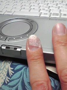 補修済み爪
